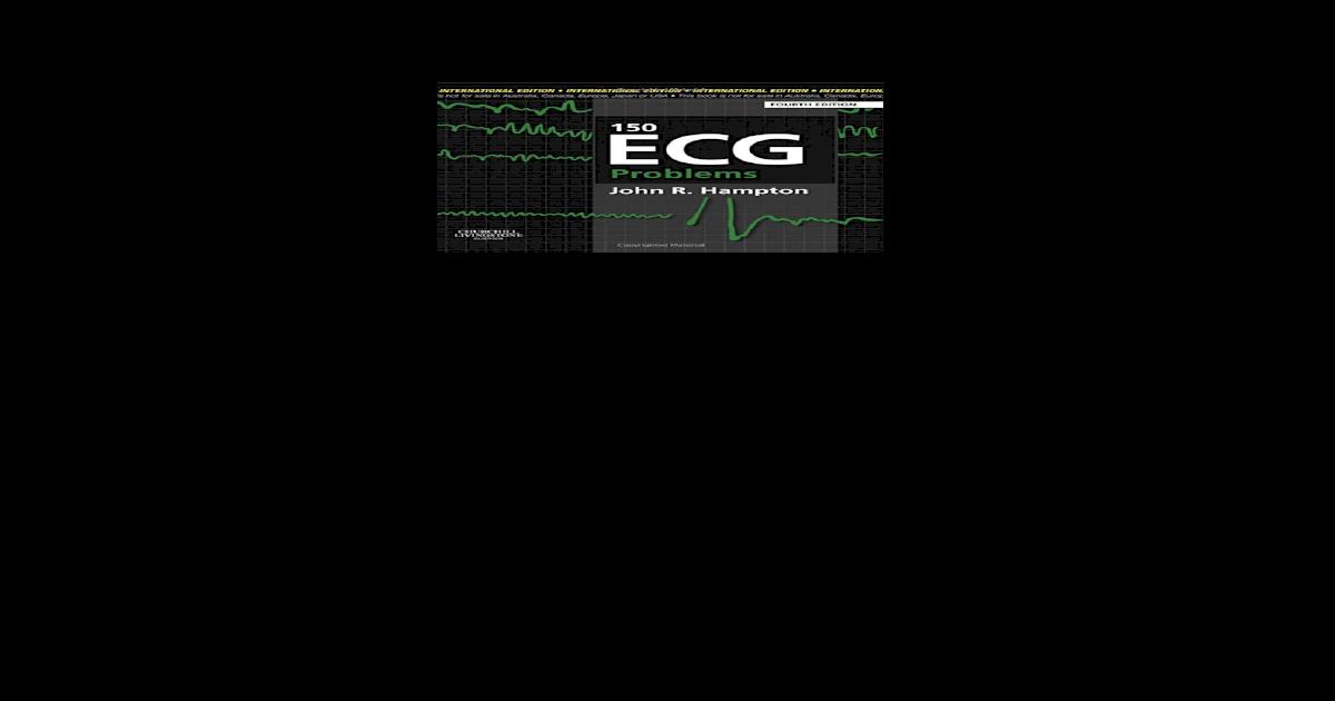 150 Ecg Problems Hampton Pdf